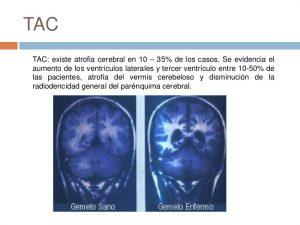 esquizofreniaTAC
