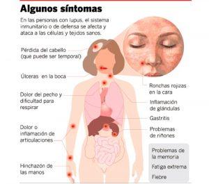 lupus-sintomas