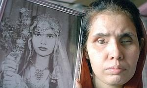 In this picture taken, 27 November 2004, Indian woman Gazala Praveen, 33, who was blinded by the December 1984 Bhopal Gas tragedy, holds a photograph of herself aged 13 at her home in Bhopal. As stated in a report released, 28 November 2004, twenty years ago a toxic gas leak killed thousands in Bhopal, shattered lives, devastated the environment and left this central Indian city with the stigma of being site of the world's deadliest industrial accident. AFP PHOTO